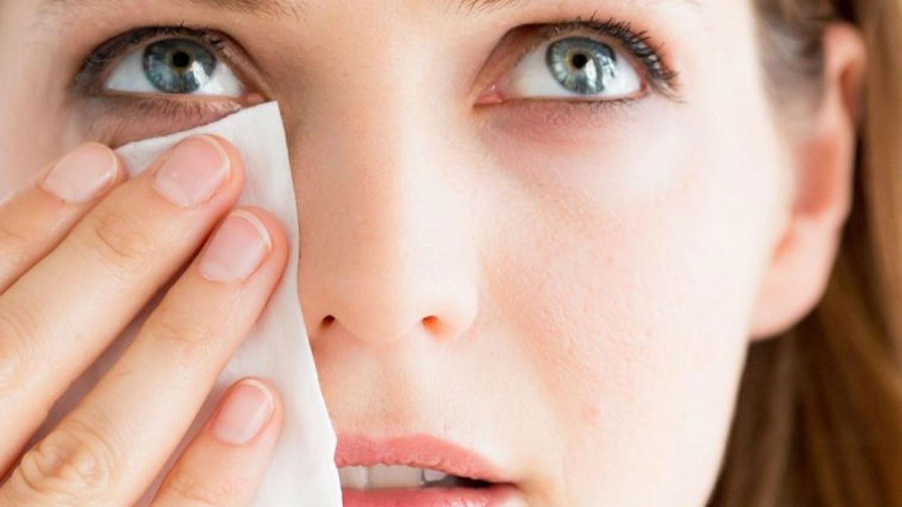 Göz altı morlukları nasıl geçer? Tedavisi nasıl olur?